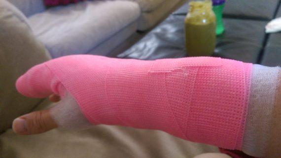 pinkcast